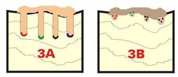 پاکسازی میکروپیگمنتیشن پاکسازی میکروپیگمنتیشن پاکسازی میکروپیگمنتیشن 3 33