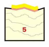 پاکسازی میکروپیگمنتیشن پاکسازی میکروپیگمنتیشن پاکسازی میکروپیگمنتیشن 5 24