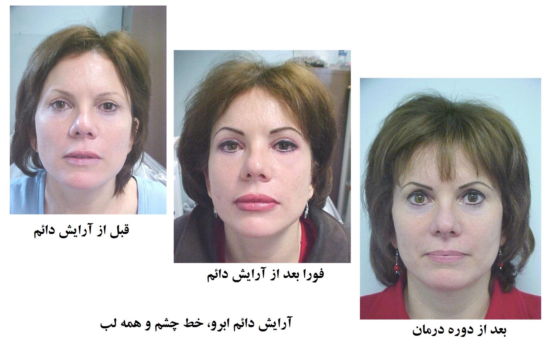 آرایش دائم آرایش دائم آرایش دائم Composite permanent makeup