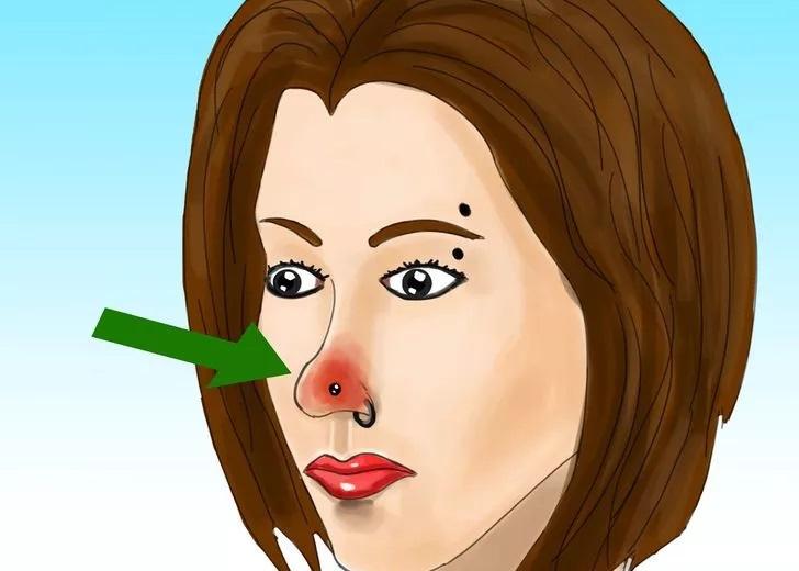 علامتهای عفونت پیرسینگ عفونت پیرسینگ علامتهای عفونت پیرسینگ 2 22